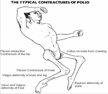 poliomyelitis